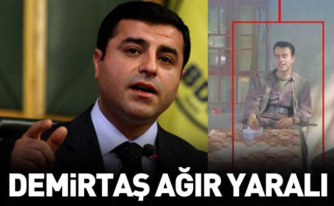 Demirtaş'ın ağır yaralandı iddiası
