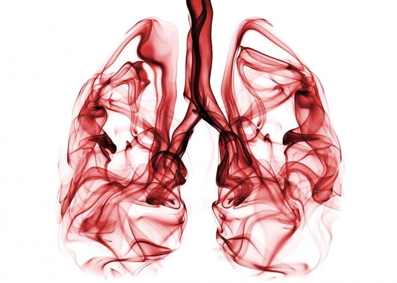 Sigaranın zararlarını temizleyen bitkiler ve akciğer detoksu tarifi