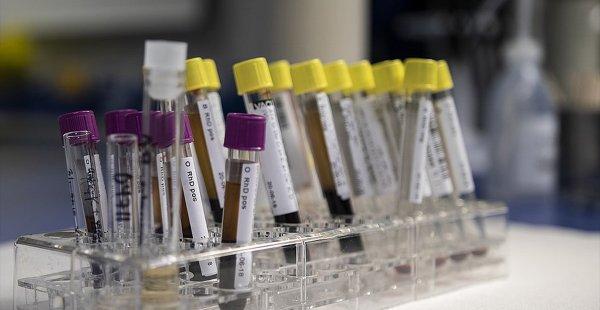 Bir Dönem Öldüren Genetik Hastalık Önlenebilir Hale Geldi