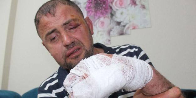 Bursa'da gazimizi darp eden saldırganlar hakkında sıcak gelişme!