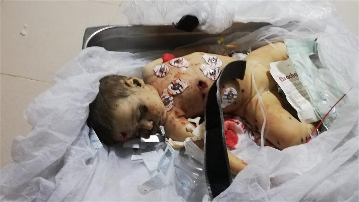 9 Aylık Muhammed Bebek Terör Örgütü Ypg/pkk'nın Kurbanı Oldu