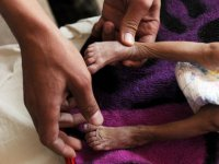 Yemen'de Halkın Yüzde 80'i Yardıma Muhtaç