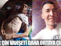 Çin, Doğu Türkistanlıların iç organları zorla çalıp satıyor.