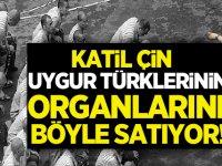 Çin Uygur Türklerinin organlarını böyle satıyor!
